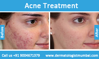 Acne Treatment In Mumbai For Face Pimples Scars Cost In India