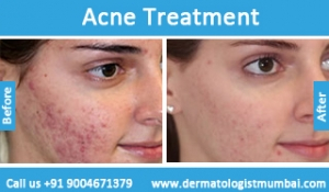 acne-treatment-before-after-photos-in-mumbai-india-2