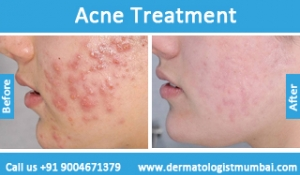 acne-treatment-before-after-photos-in-mumbai-india-3
