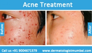 acne-treatment-before-after-photos-in-mumbai-india-6