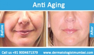 anti-aging-treatment-before-after-photos-in-mumbai-india-1
