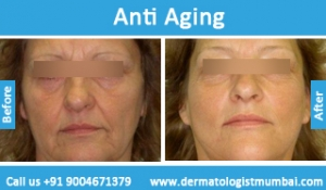 anti-aging-treatment-before-after-photos-in-mumbai-india-2