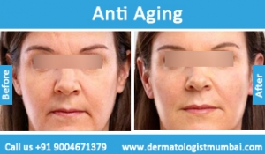 anti-aging-treatment-before-after-photos-in-mumbai-india-3