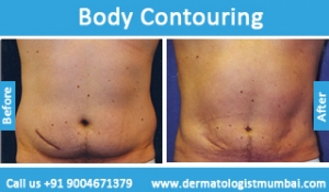body-contouring-treatment-before-after-photos-in-mumbai-india-2