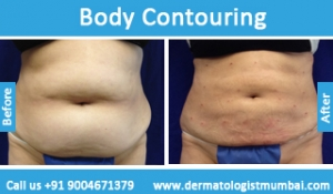 body-contouring-treatment-before-after-photos-in-mumbai-india-3