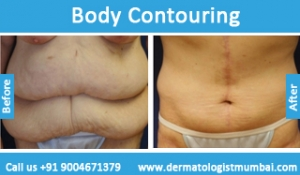 body-contouring-treatment-before-after-photos-in-mumbai-india-4