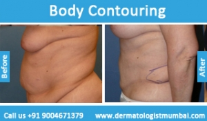 body-contouring-treatment-before-after-photos-in-mumbai-india-5