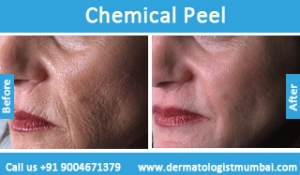 chemical-skin-peeling-treatment-before-after-photos-in-mumbai-india-6