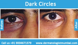 dark-circles-treatment-before-after-photos-in-mumbai-india-1
