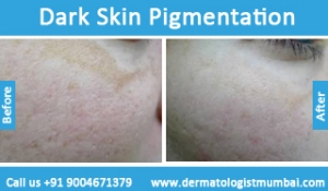 dark-skin-pigmentation-treatment-before-after-photos-in-mumbai-india-3