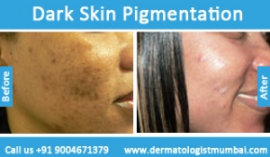 dark-skin-pigmentation-treatment-before-after-photos-in-mumbai-india-4