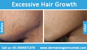 excessive-hair-growth-treatment-before-after-photos-in-mumbai-india-1
