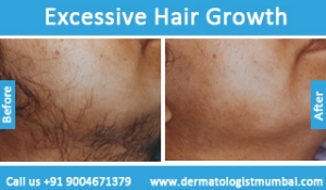 excessive-hair-growth-treatment-before-after-photos-in-mumbai-india-6