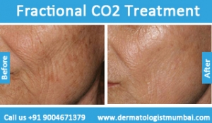 fractional-co2-laser-treatment-4