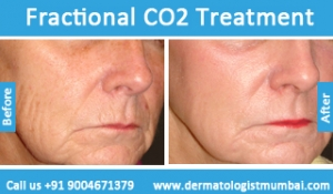 fractional-co2-laser-treatment-before-after-photos-in-mumbai-india