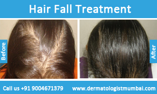 Best Hair Loss Treatment In Mumbai For Hair Fall Cost In India