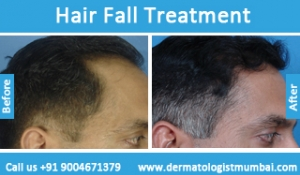 hair-loss-treatment-before-after-photos-in-mumbai-india-1