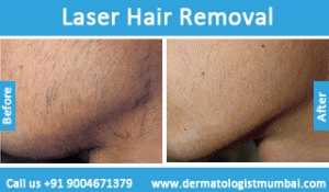 laser-hair-removal-treatment-before-after-photos-in-mumbai-india-1