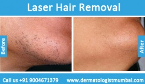 laser-hair-removal-treatment-before-after-photos-in-mumbai-india-2