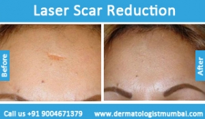 laser-scar-reduction-treatment-before-after-photos-in-mumbai-india-2