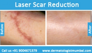 laser-scar-reduction-treatment-before-after-photos-in-mumbai-india-6