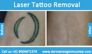 laser-tattoo-removal-treatment-before-after-photos-in-mumbai-india-1