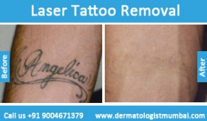 laser-tattoo-removal-treatment-before-after-photos-in-mumbai-india-3
