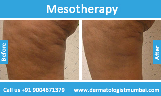 Mesotherapy In Mumbai Mesotherapy Treatment In India
