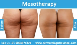mesotherapy-treatment-before-after-photos-in-mumbai-india-1