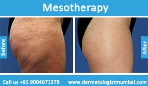 mesotherapy-treatment-before-after-photos-in-mumbai-india-2