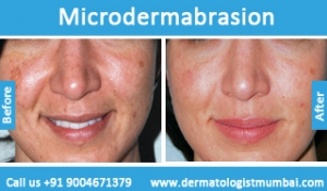 microdermabrasion-treatment-before-after-photos-in-mumbai-india-4