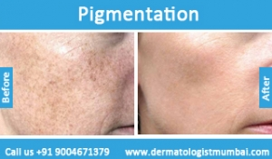 skin-pigmentation-treatment-before-after-photos-in-mumbai-india-1