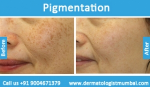 skin-pigmentation-treatment-before-after-photos-in-mumbai-india-2
