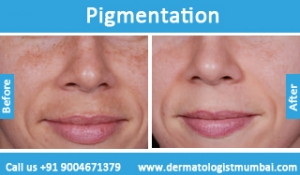 skin-pigmentation-treatment-before-after-photos-in-mumbai-india-3