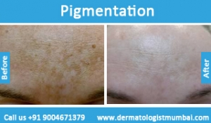 skin-pigmentation-treatment-before-after-photos-in-mumbai-india-4