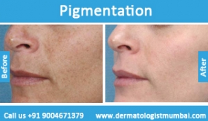 skin-pigmentation-treatment-before-after-photos-in-mumbai-india-6