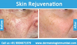 skin-rejuvenation-treatment-before-after-photos-in-mumbai-india-3