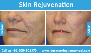 skin-rejuvenation-treatment-before-after-photos-in-mumbai-india-5
