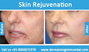 skin-rejuvenation-treatment-before-after-photos-in-mumbai-india-6