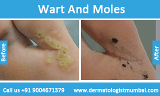 Laser Wart, Mole and Skin Tag Removal Treatment in Mumbai, India