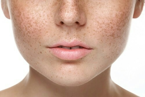 laser face skin pigmentation treatment in mumbai, india